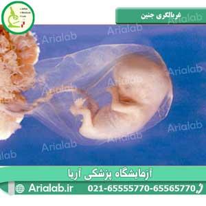 غربالگری جنین